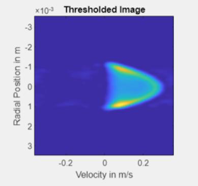 MRI Flow image