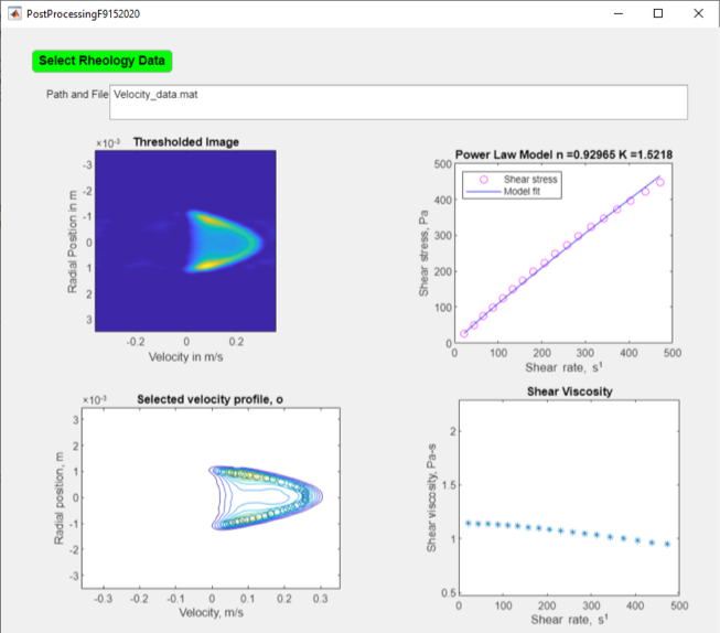 ViscoMR Rheological flow image and shear rate plot